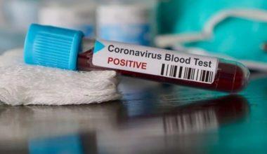 Erkeklik Hormonu Koronavirüsten Koruyabilir